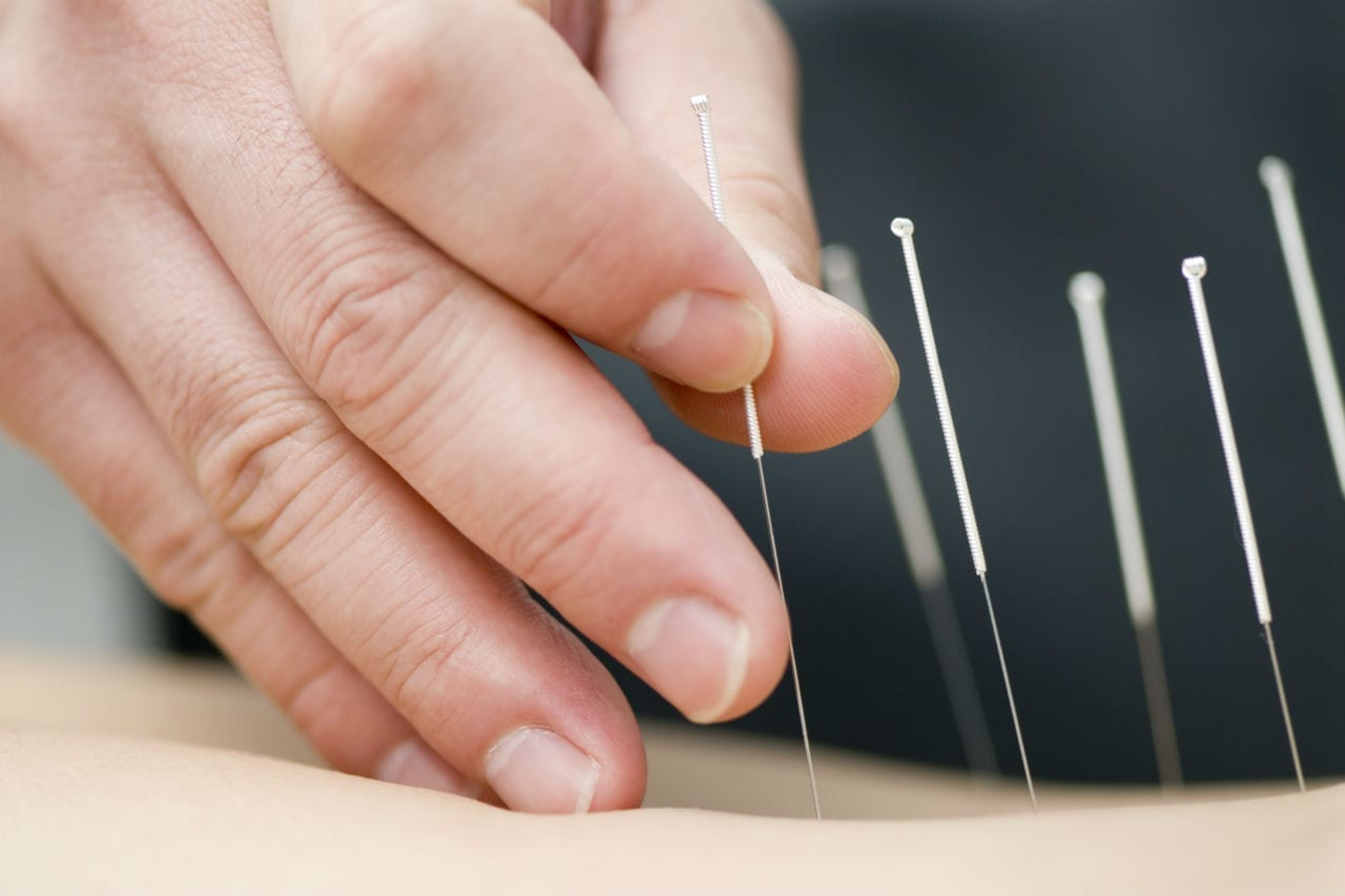 close up photo of dry needling